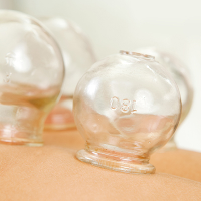 Suction cups of cupping therapy.